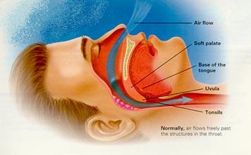 snoring diagram